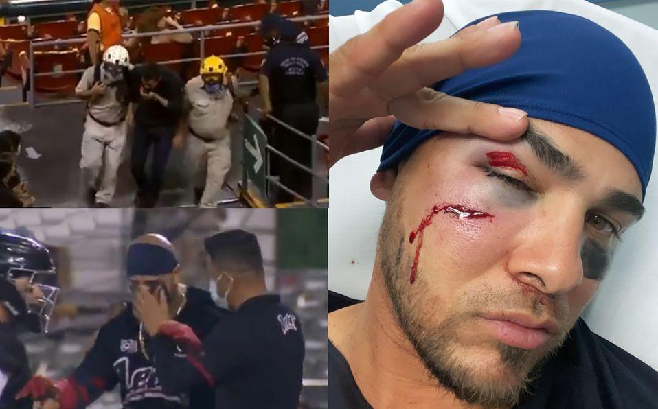 ¡DRAMÁTICO! Fan y pelotero son golpeados en la cara en el mismo inning